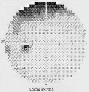 campo visivo glaucoma
