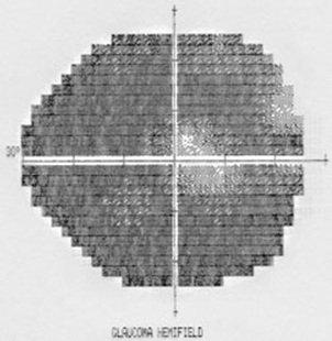 campo glaucoma severo