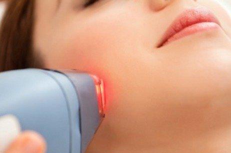 Curare i capillari con il Laser