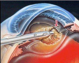 facoemulsificazione chirurgia cataratta