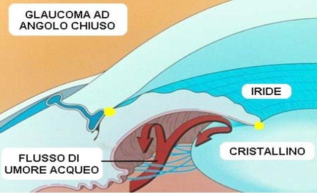 glaucoma angolo chiuso
