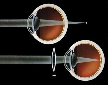ipermetropia difetto visivo