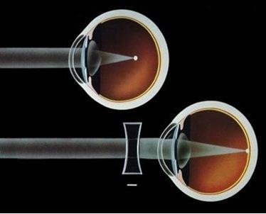 miopia difetti visivi