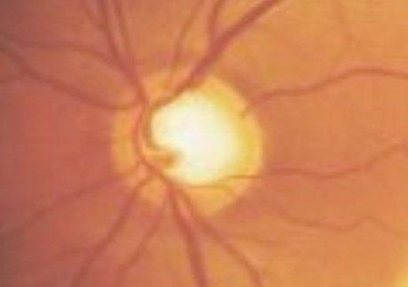 nervo ottico glaucomatoso