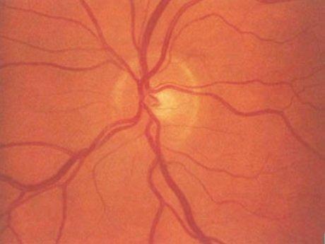 nervo ottico normale