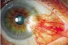 pterigion oculare