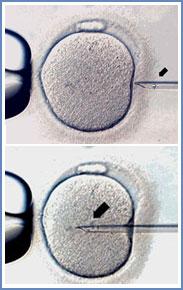 inseminazione spermatozoo