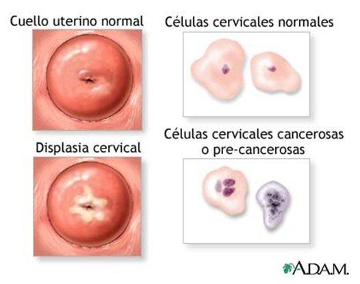 esame utero vagina